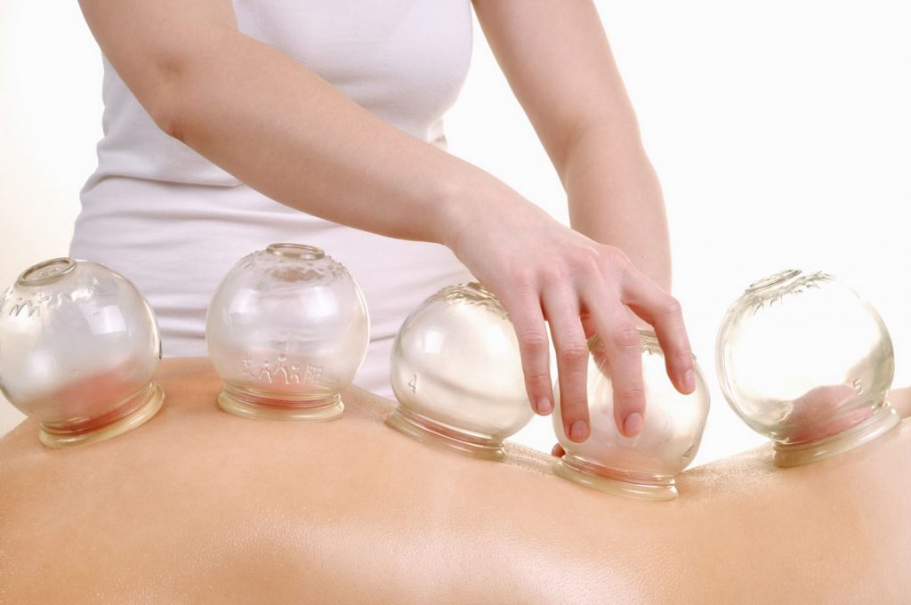 Cupping Acupuncture